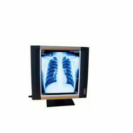 Hospital Use X-ray film illuminator & Viewer-MSLXF10